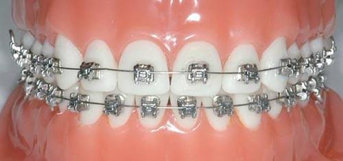 diş teli ortodonti