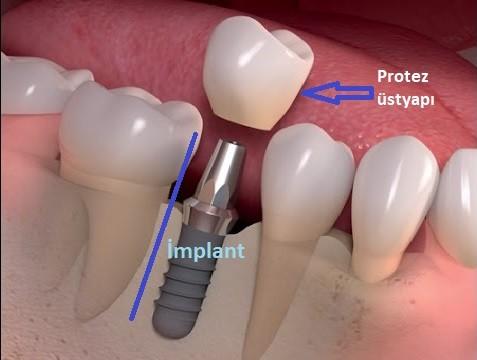 Ostim Diş Polikliniği Dent Metro