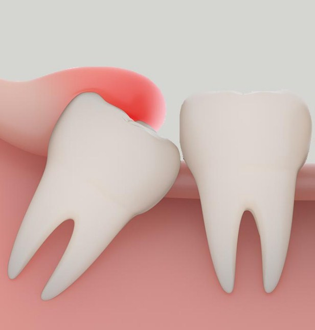 yirmi yaş dişleri